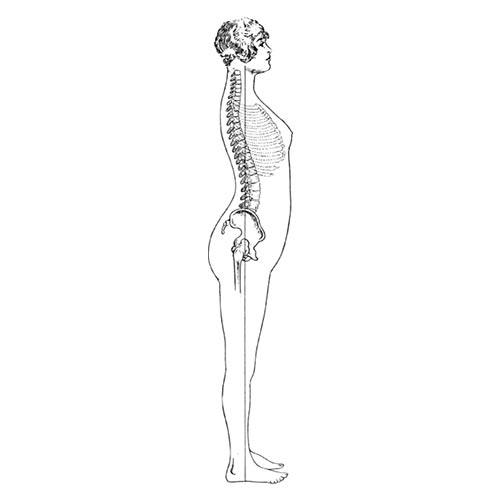 Answer LORDOSIS