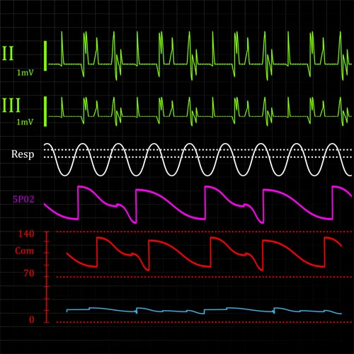 Answer HEART MONITOR