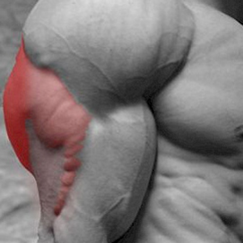 Answer TRICEP
